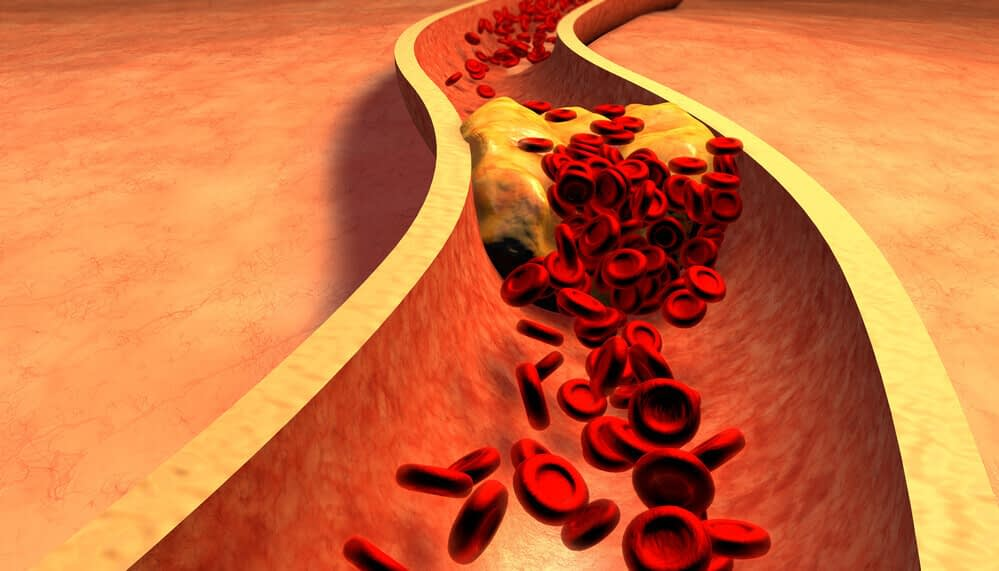 atherosclerosis erectile dysfunction 1