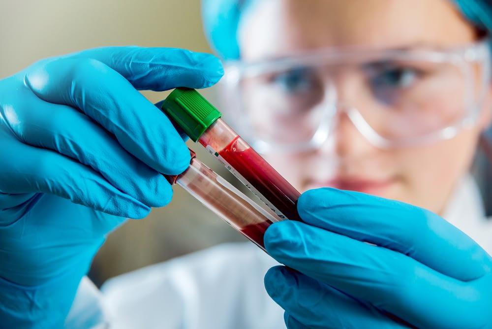 blood samples for erectile dysfunction
