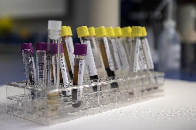 blood samples in laboratory